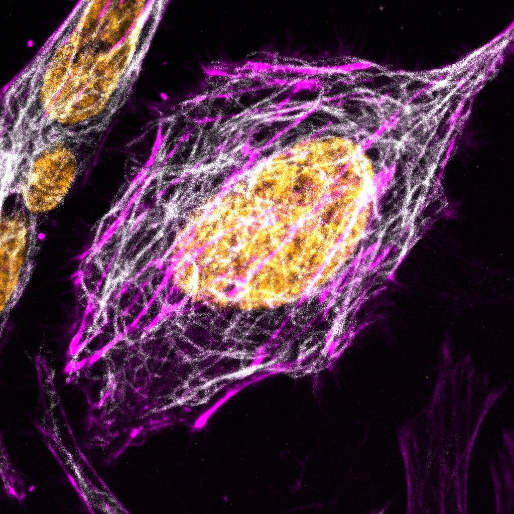 HeLa_SPY555-actin_SPY595-DNA_SPY650-tubulin