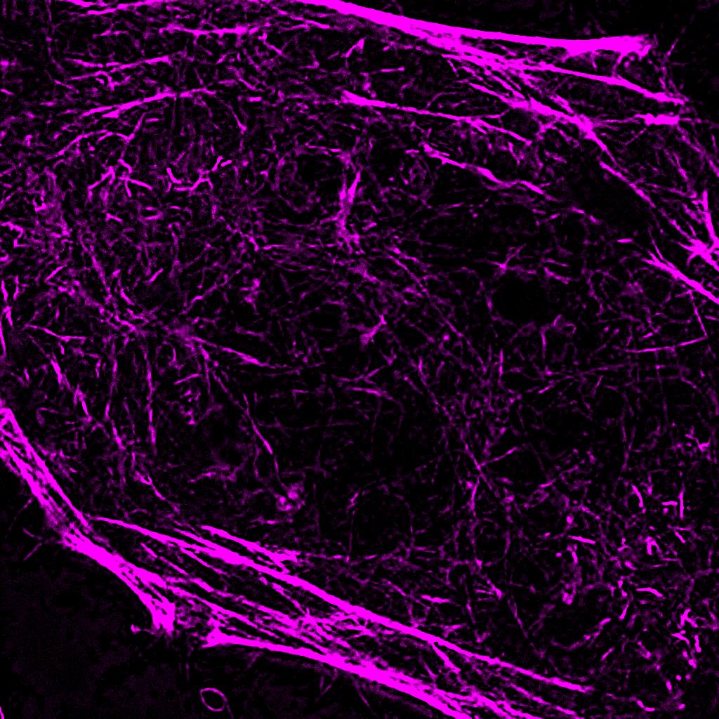 HeLa_SPY555-actin_STED