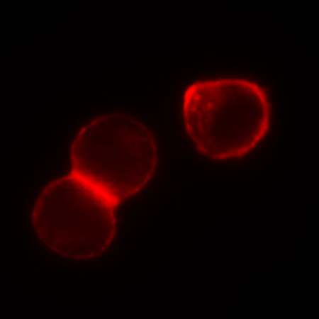 Figure 3. Widefield fluorescent imaging of live HeLa S1 cells labeled with 10 nM NR12S. HeLa S1 cells were imaged with a TRITC filter set, neutral density filter, a digital CCD camera, and 100x oil objective (false colored red).