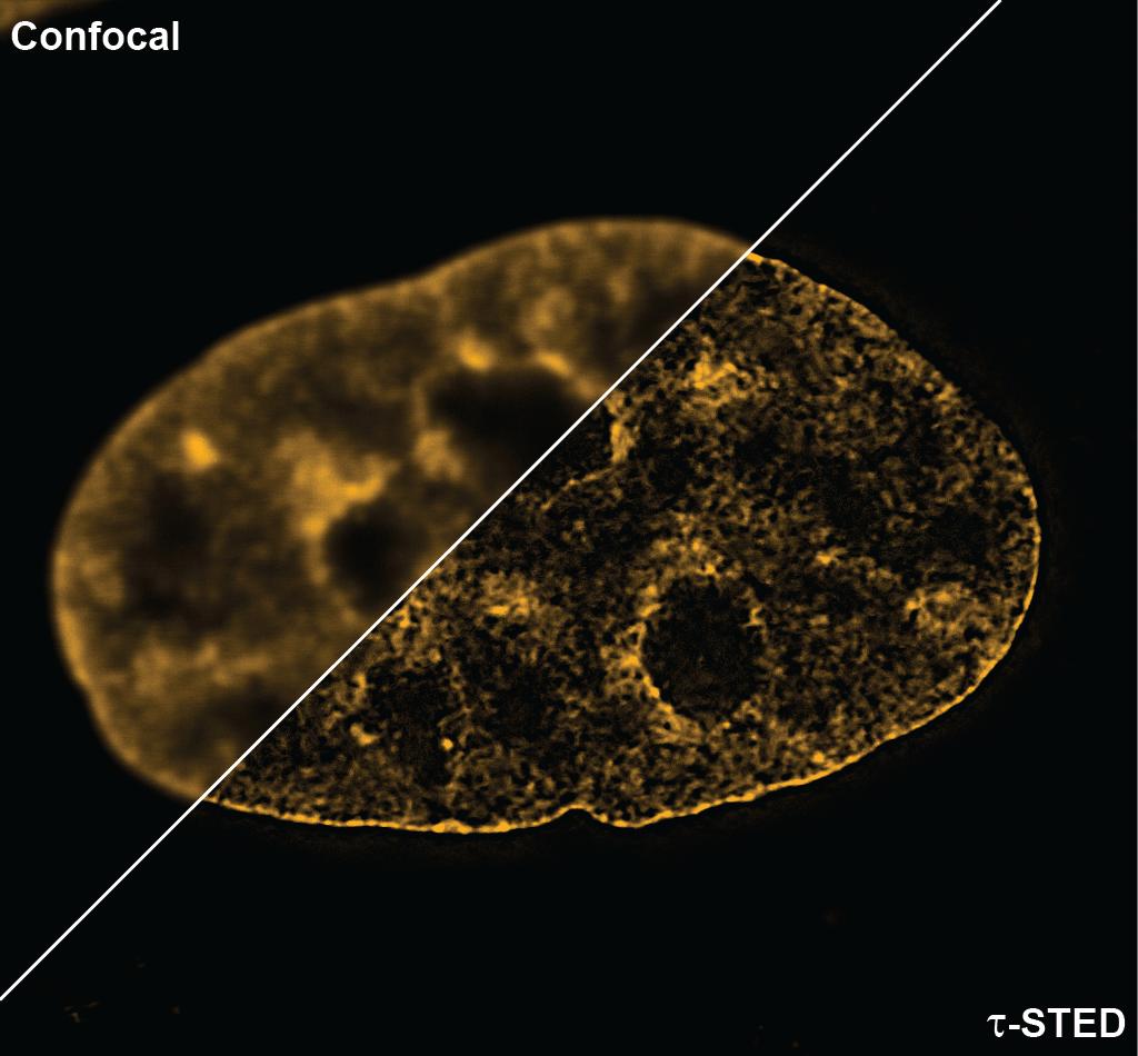 SPY595-DNA_confocal_vs_STED