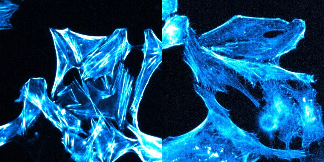 SiR-actin(left)_VS_SPY650-FastAct(right)