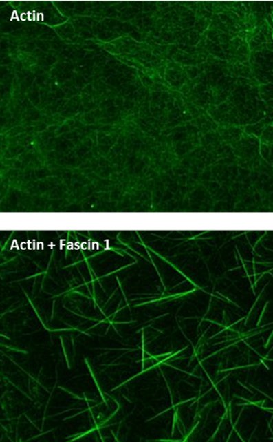 Figure Legend: Actin filaments alone and with fascin 1 stained with Acti-stainTM 488 Phalloidin as described in the method. Actin filaments were observed under a fluorescent microscope with a 480Ex/535Em filter set, a digital CCD camera, and 63x objective.