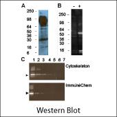 Acetyl Lysine Western Blot