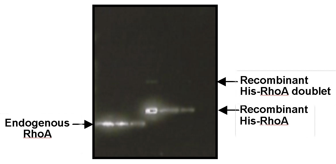 Figure 1: Double-helical structure of actin filaments