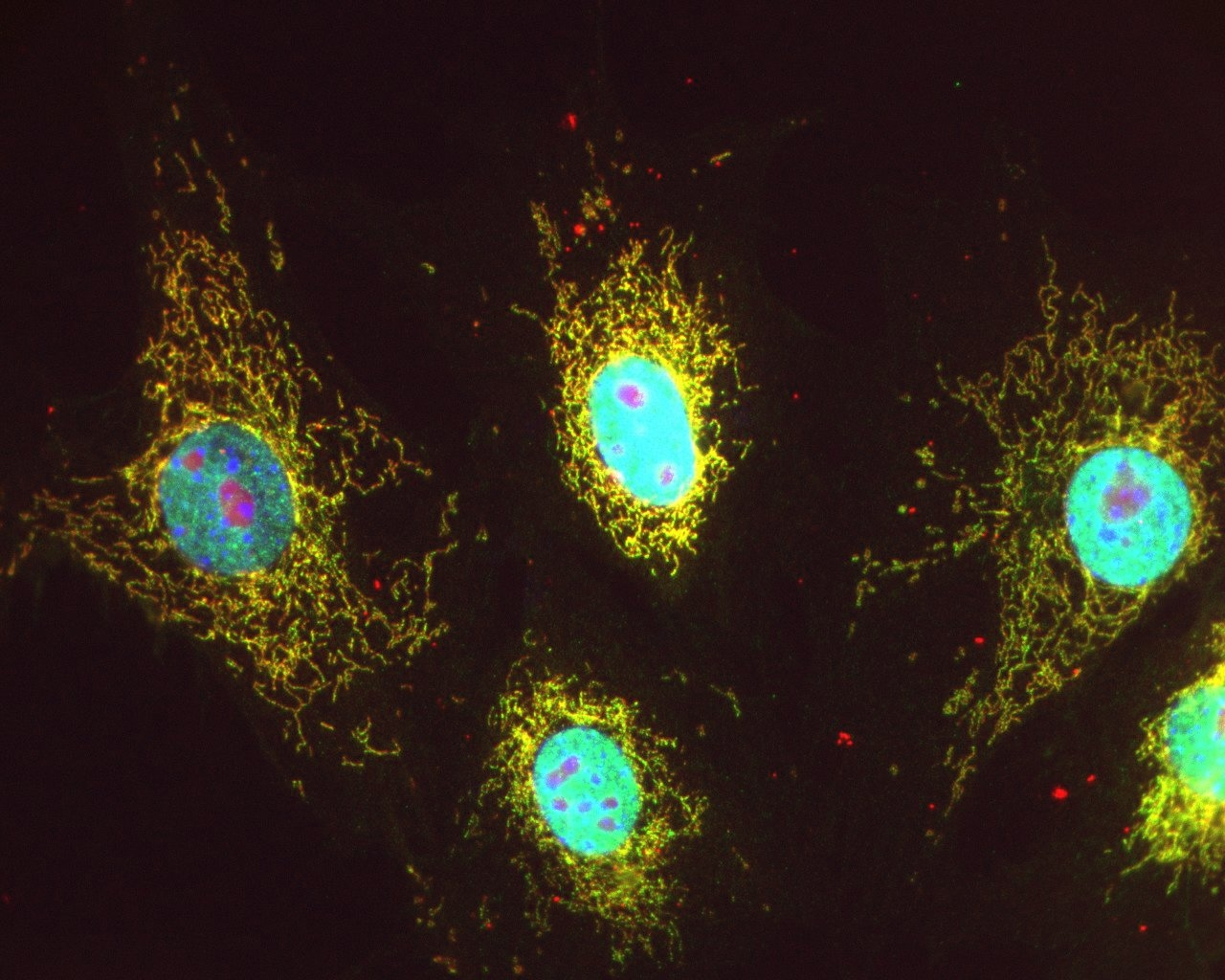 Visualization of acetylated mitochondrial proteins in Swiss 3T3 cells. Acetylated mitochondrial-localized proteins were labeled with acetyl-lysine antibody (Cat. # AAC02) and alexa-488 secondary (green), or a fluorescent mitochondrial marker (mitotracker orange) shown in red.