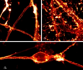 Figure 1. Live cell imaging in neurons with STED microscopy and 100 nM SiR-actin. Upper left: Hippocampal rat neuron, 8 DIV. Upper right: Hippocampal rat neuron, 17 DIV. Bottom image: Rat cerebellar granule neuron, 21 DIV. All images courtesy of Elisa D'Este, MPI Biophysical Chemistry, Göttingen.