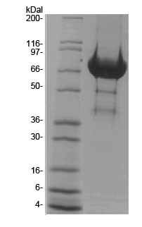 Tiam1 DHPH domain SDS-PAGE gel analysis