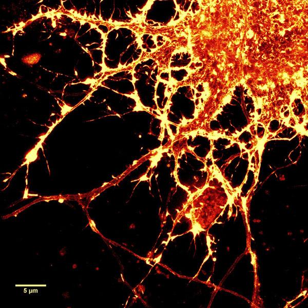 Neuron_actin_1