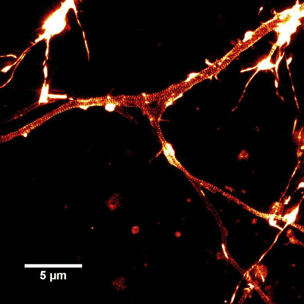 STED image of cultured rat hippocampal neurons stained with SiR-actin. Actin rings (stripes) with 180 nm periodicity can be seen. Courtesy Of Elisa D'Este, MPI Biophysical Chemistry, Göttingen.
