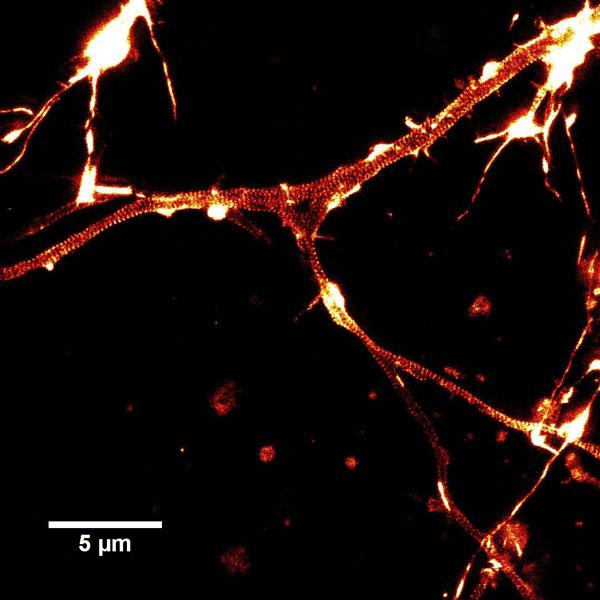 Neuron_actin_closup1_1