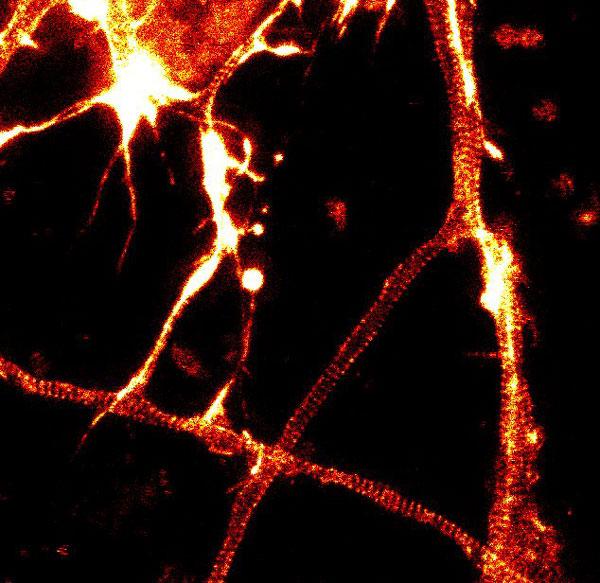 Neuron_actin_closup2_1