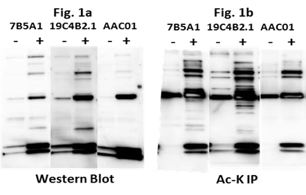 Figure 1 Legend: Untreated A431 cells were lysed with BlastR lysis buffer (Cytoskeleton Inc.), RIPA lysis buffer, or 1% SDS denaturing lysis buffer supplemented with deSUMOylase inhibitors (NEM+TPEN).  1mg of each lysate was incubated with the recommended amount of SUMO 2/3 affinity beads (ASM24-beads) or IgG control beads (CIG01) (Cytoskeleton Inc.). Immunoprecipitated samples were separated by SDS-PAGE and transferred to PVDF. Western blot was performed with SUMO 2/3 antibody (ASM23-HRP), TFII-I, RANGAP1, or Ubc9.