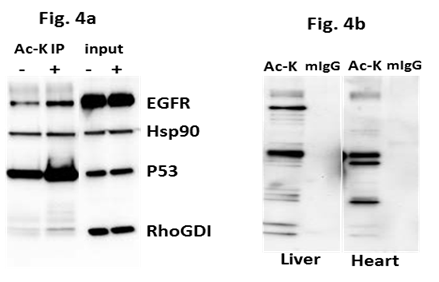 Figure 4 Legend: Untreated, Taxol 100nM, or serum restricted (0% FBS) treated A431, or Hela cells were lysed with BlastR lysis buffer (Cytoskeleton Inc.) supplemented with deSUMOylase inhibitor (NEM).  1mg of each lysate was incubated with the recommended amount of SUMO 2/3 affinity beads (ASM24-beads) or IgG control beads (CIG01) (Cytoskeleton Inc.). Immunoprecipitated samples were separated by SDS-PAGE and transferred to PVDF. Western blot was performed with RhoGDI.