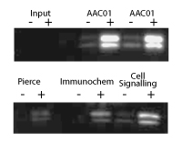 Acetyl Lysine Immunoprecipitation