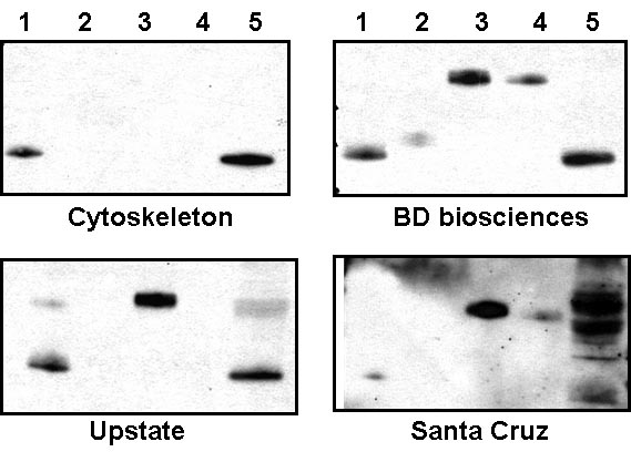 Rac1 Antibody Comparison
