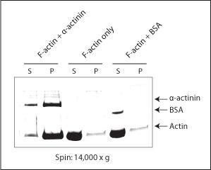 bk001-bundling