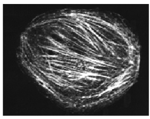 rhodamine-labeled non-muscle actin