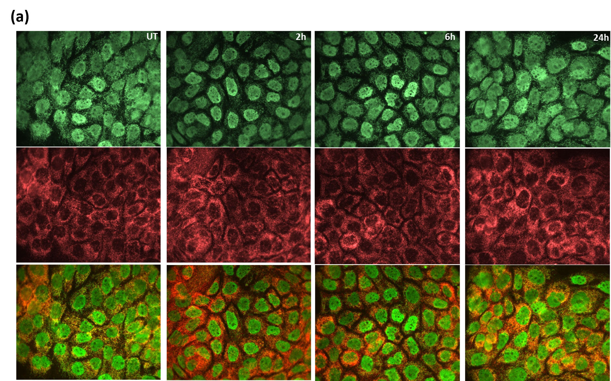 Figure 2a: A431 treated with 100uM H2O2 at different time intervals(0, 2, 6, and 24 hours) were stained as described previously. Acetylated proteins were visualized in green fluorescence. Mitochondria were visualized in red fluorescence using mitochondrial marker (anti-hexokinase1, Abcam). Merged images identified co-localization of mitochondrial and acetylation signals. The results show that AAC02 detects dynamics changes of mitochondrial acetylation in A431 cells with H2O2  treatment.