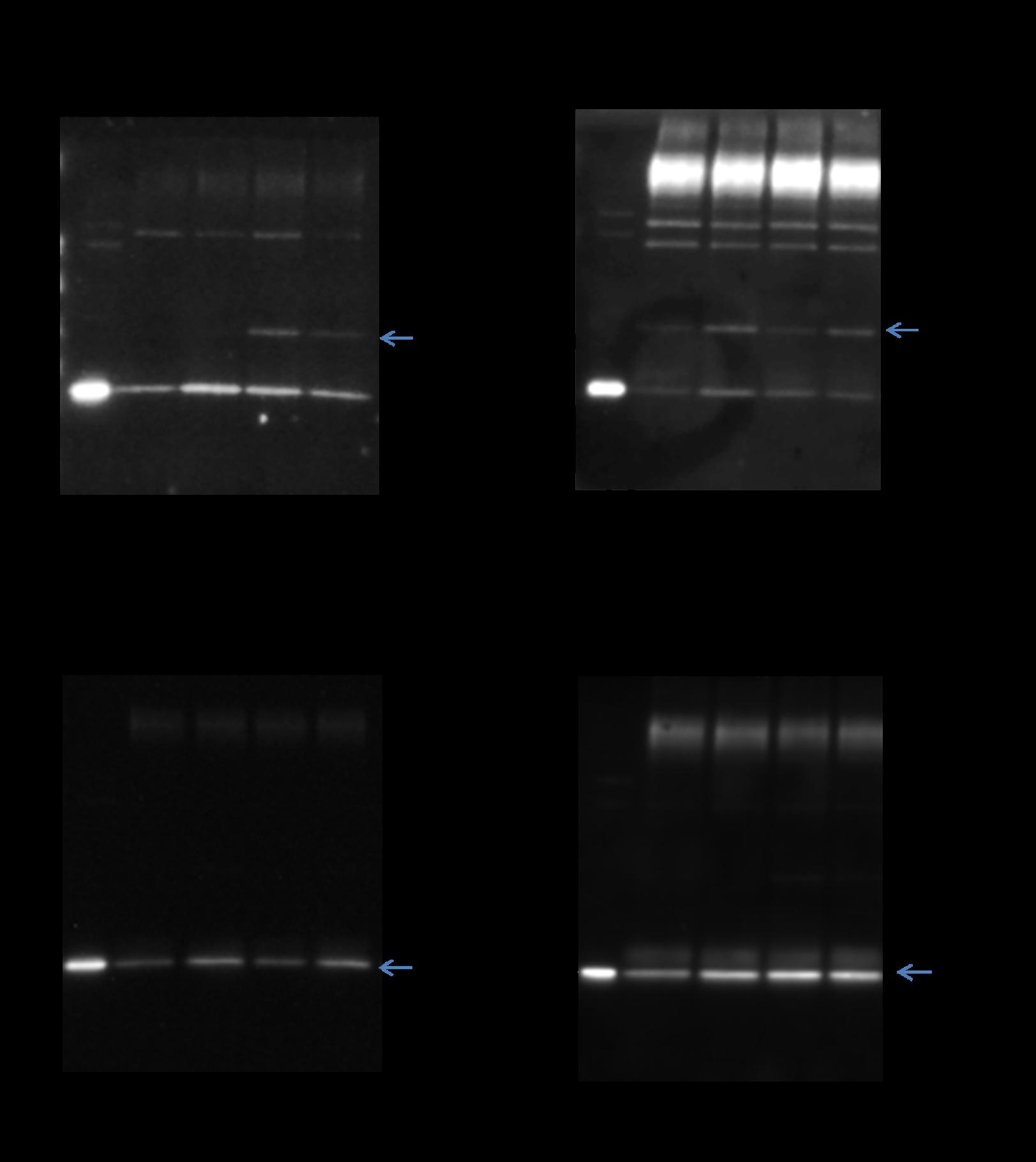 Figure 3. Crosstalk between RhoGDI acetylation and SUMO 2/3 modification.