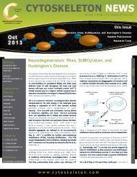 Neurodegeneration newsletter